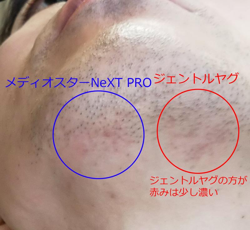 ゴリラクリニック_照射後の肌の色
