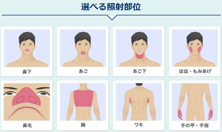 メンズリゼのトライアル脱毛の対象部位