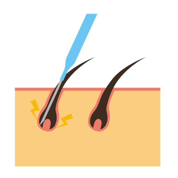美容電気脱毛とニードル脱毛(絶縁針脱毛)のイメージ